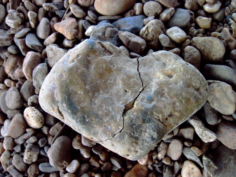 אבנים בכליות טיפול נכון