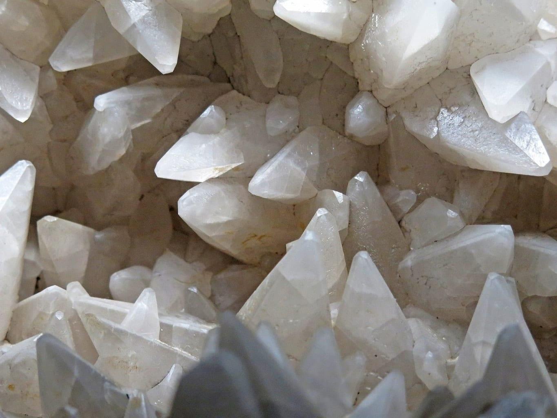 אבנים בכליות